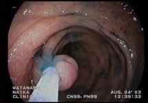 大腸内視鏡検査 症例3-3