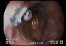大腸内視鏡検査 症例3-4